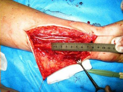Гомеопатии препарат из лыкування папилломавируса фото